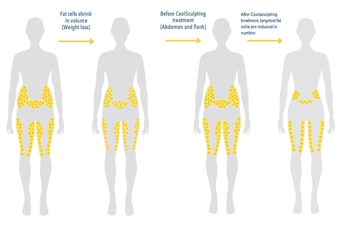 liposuction areas diagram body sculpting nyc | new york body sculpting #10