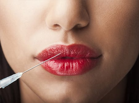 Hyaluronic acid-based fillers