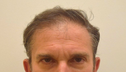 Neograft For Hair Loss Before and After 11